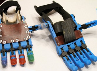 A robotic hand allowed a 5-year-old girl with poland syndrome to join a big game